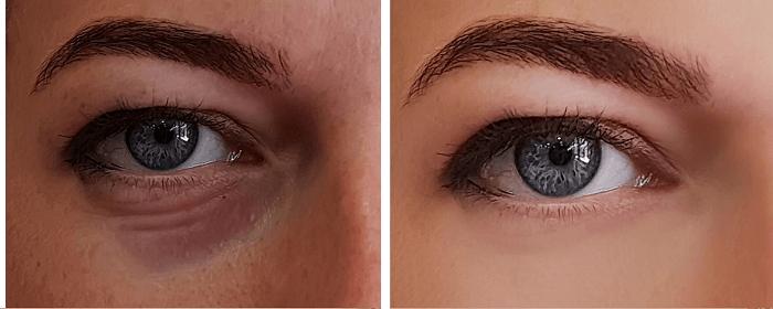 As olheiras podem surgir por diferentes motivos e seu tratamento vai de cuidados domésticos a procedimentos estéticos com um profissional